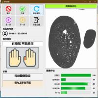 现场手印转印扫描系统活体指掌纹转印采集系统